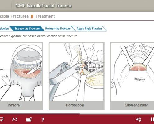Maxillofacial Trauma Course Screenshot 6